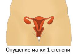Медецина выпадание матки и сексуальная жизнь